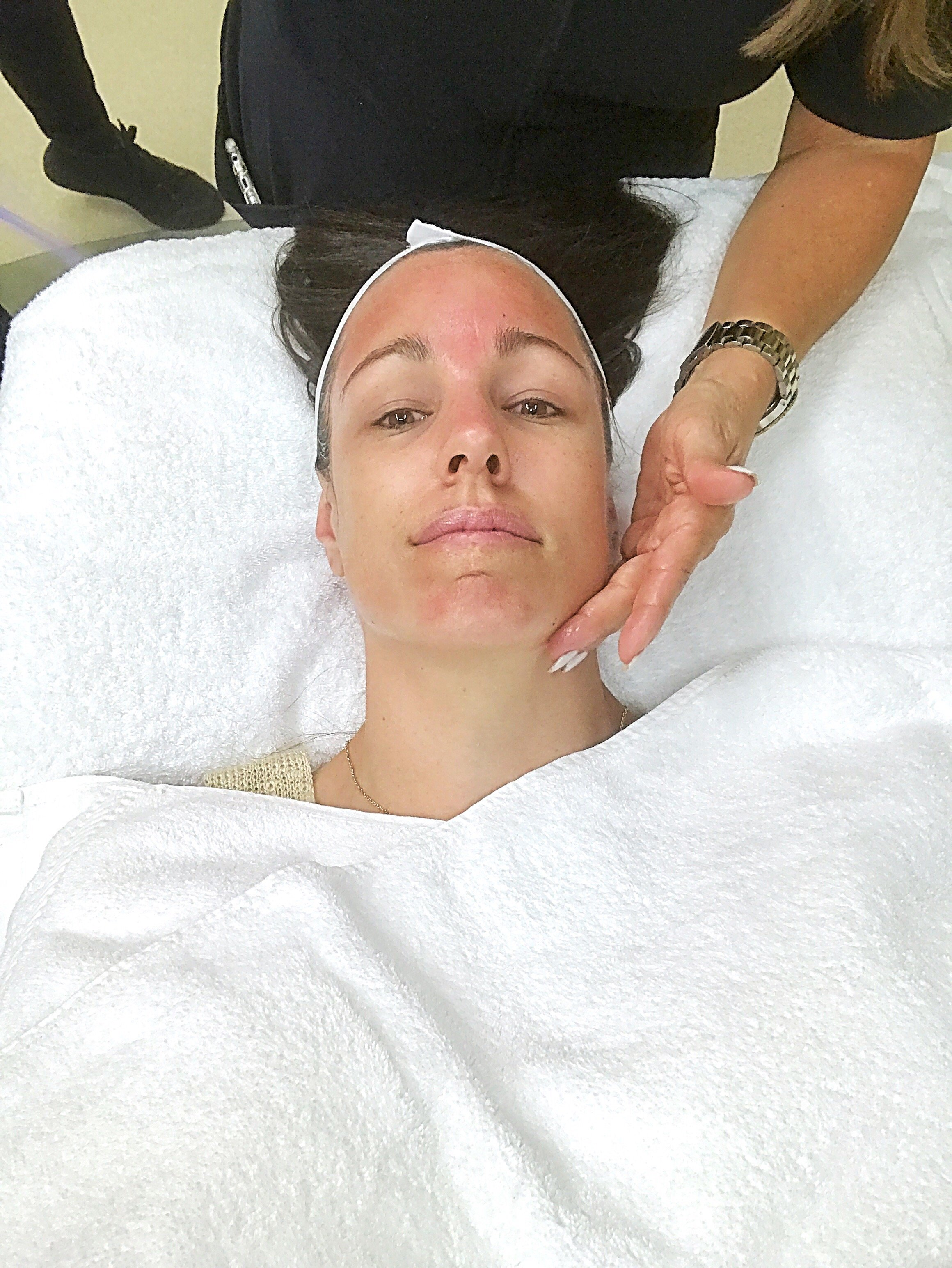 Blackhawk Plastic Surgery, Blackhawk Plastic Surgery review, hydrafacial,