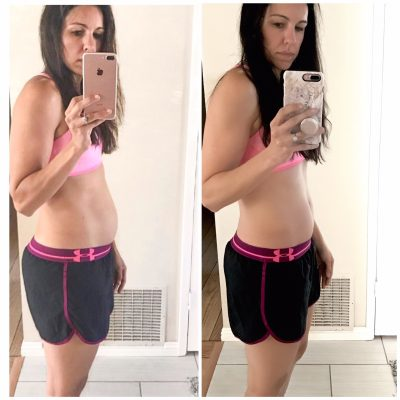 CoolSculpting Update: The Final Results